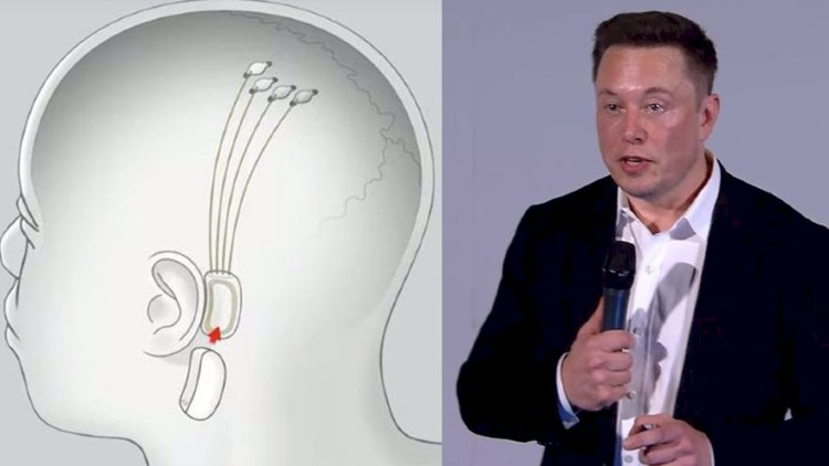 Depression or Addiction? Elon Musk has a Solution!