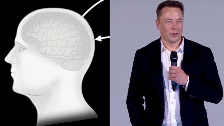 We're so close to see the Brain Chip from Elon Musk